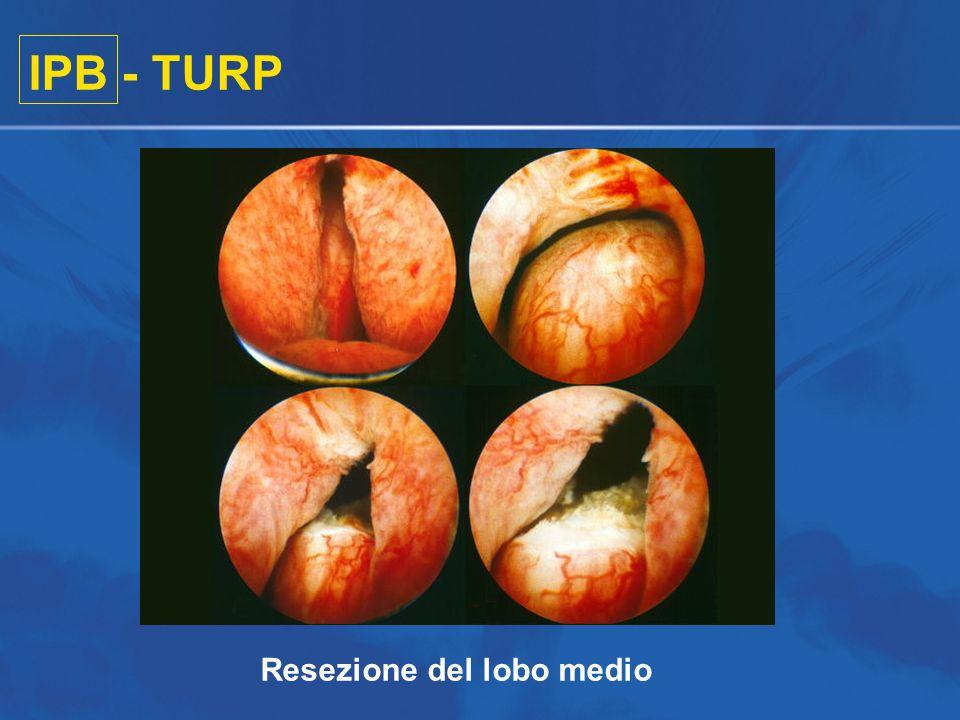 IPB - TURP Resezione del lobo medio
