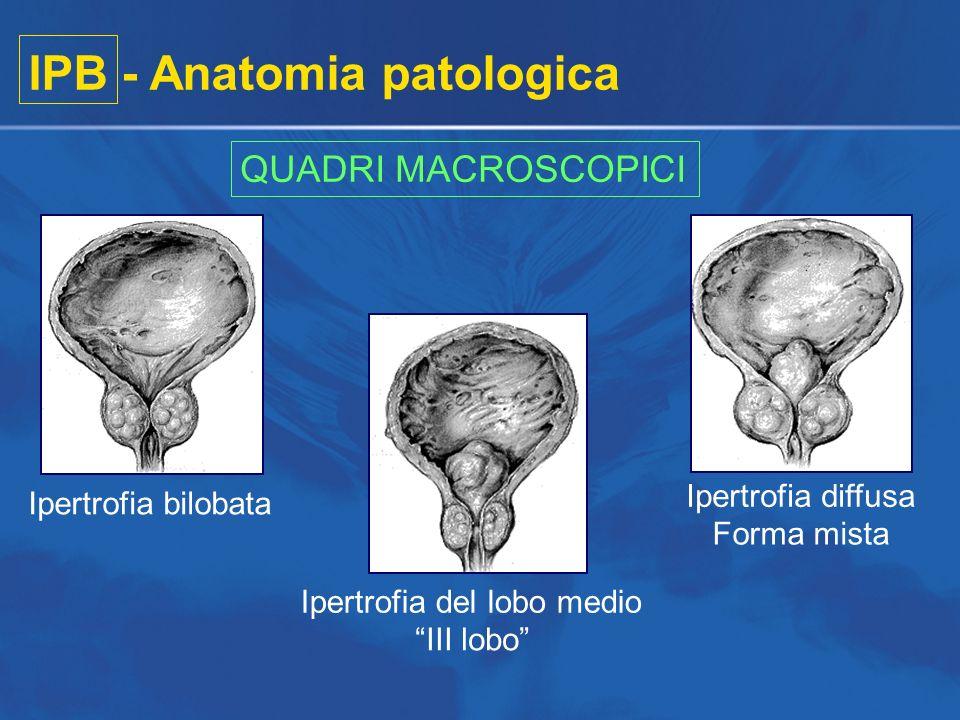 IPB - Anatomia patologica QUADRI MACROSCOPICI Ipertrofia bilobata Ipertrofia del lobo medio III lobo Ipertrofia diffusa Forma mista