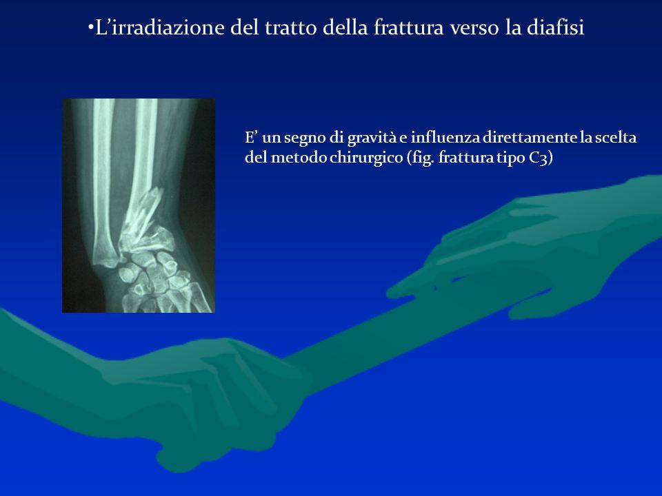 Lirradiazione del tratto della frattura verso la diafisi E un segno di gravità e influenza direttamente la scelta del metodo chirurgico (fig. frattura