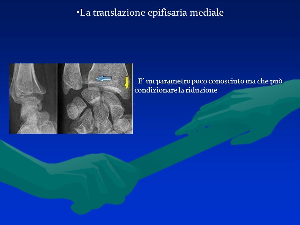 La translazione epifisaria mediale E un parametro poco conosciuto ma che può condizionare la riduzione