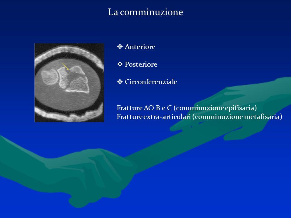 La comminuzione Anteriore Posteriore Circonferenziale Fratture AO B e C (comminuzione epifisaria) Fratture extra-articolari (comminuzione metafisaria)