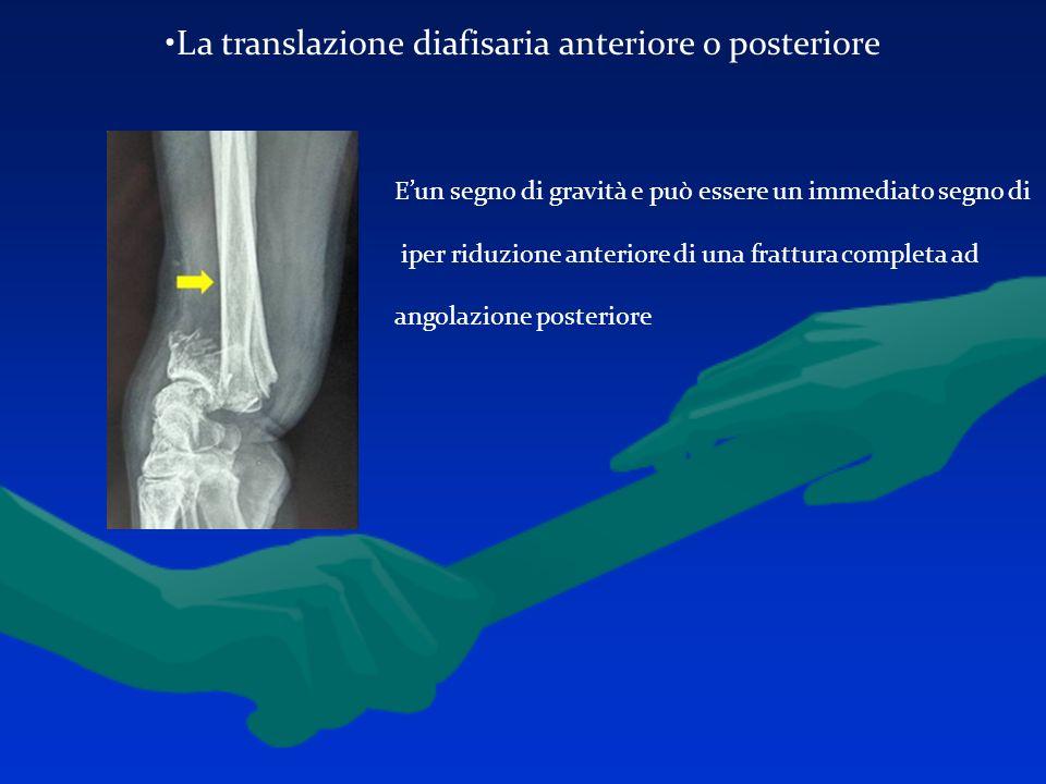 La translazione diafisaria anteriore o posteriore Eun segno di gravità e può essere un immediato segno di iper riduzione anteriore di una frattura com