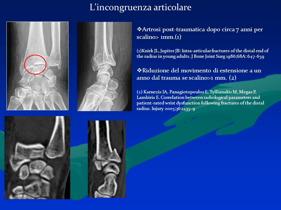 Lincongruenza articolare Artrosi post-traumatica dopo circa 7 anni per scalino> 1mm.(1) (1)Knirk JL, Jupiter JB: Intra-articular fractures of the dist