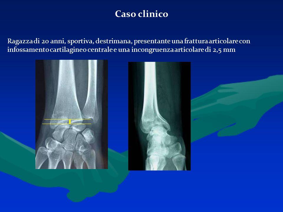 Caso clinico Ragazza di 20 anni, sportiva, destrimana, presentante una frattura articolare con infossamento cartilagineo centrale e una incongruenza a