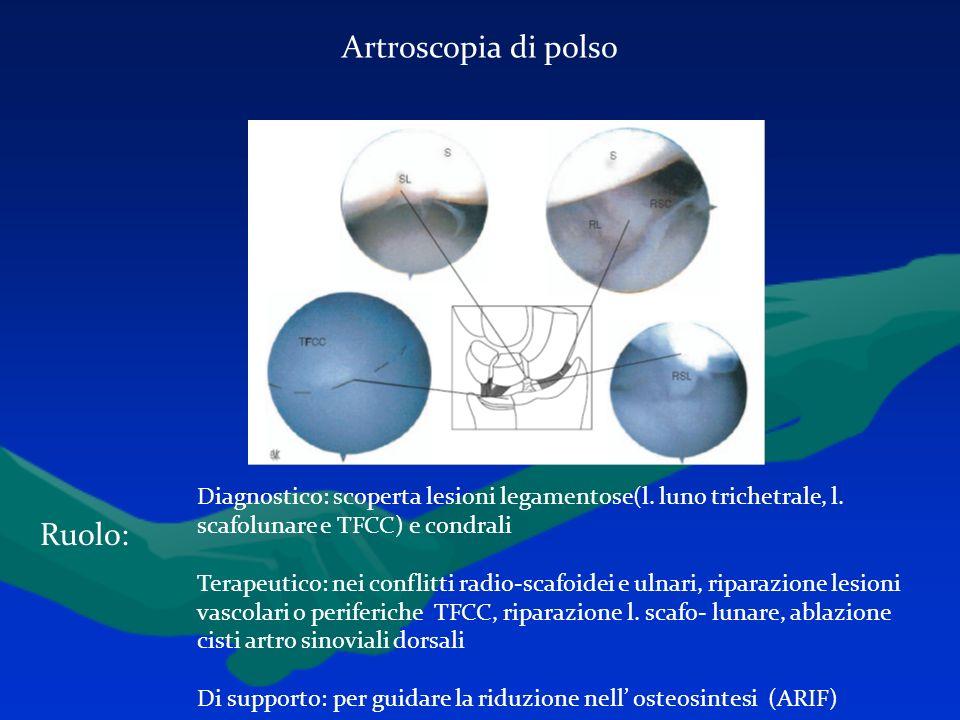 Artroscopia di polso Ruolo: Diagnostico: scoperta lesioni legamentose(l. luno trichetrale, l. scafolunare e TFCC) e condrali Terapeutico: nei conflitt