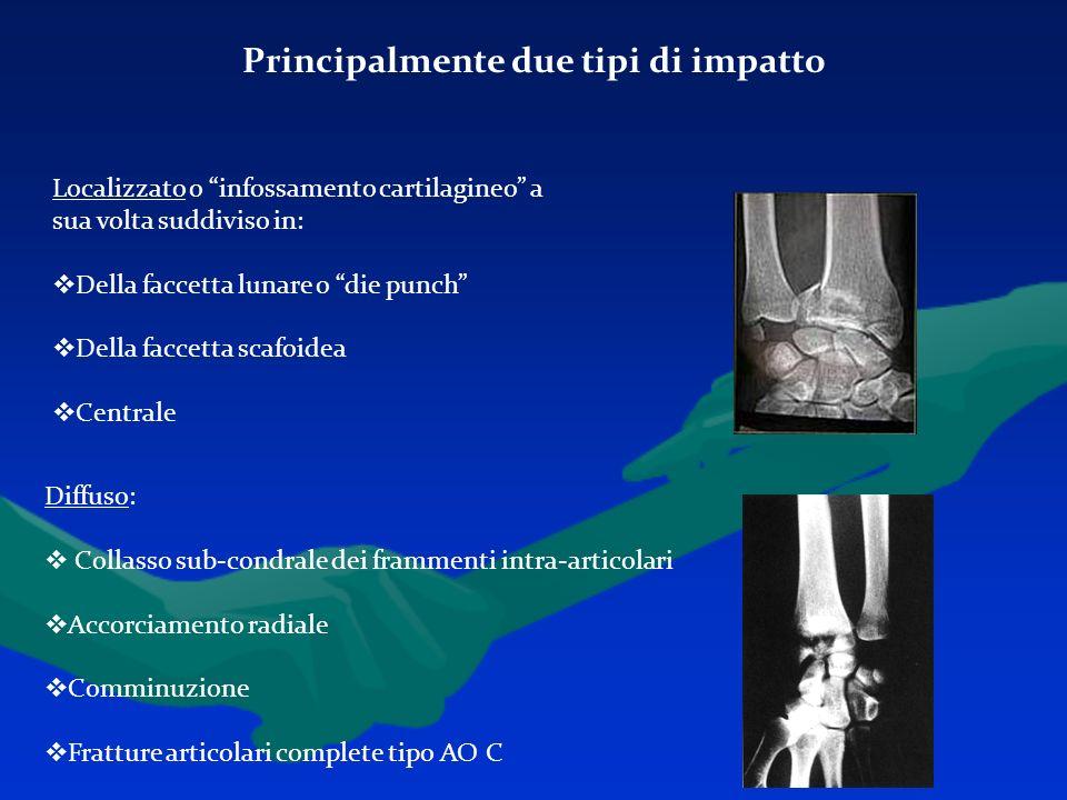 Principalmente due tipi di impatto Localizzato o infossamento cartilagineo a sua volta suddiviso in: Della faccetta lunare o die punch Della faccetta