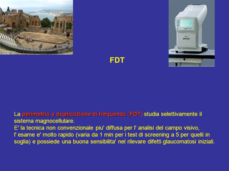 FDT perimetria a duplicazione di frequenza (FDT La perimetria a duplicazione di frequenza (FDT) studia selettivamente il sistema magnocellulare. E' la