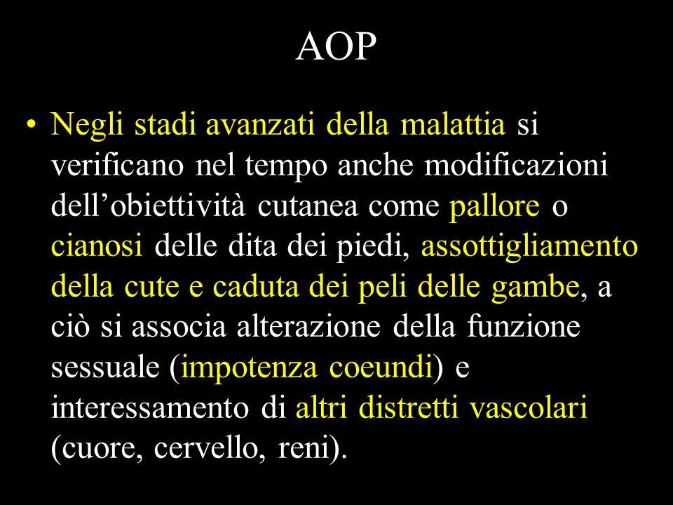 Classificazione di Fontaine sintomisegni I stadio, asintomatico La diagnosi è solo strumentale o retrospettiva II stadio Caratterizzato dal sintomo cl