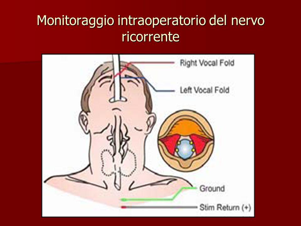 Monitoraggio intraoperatorio del nervo ricorrente