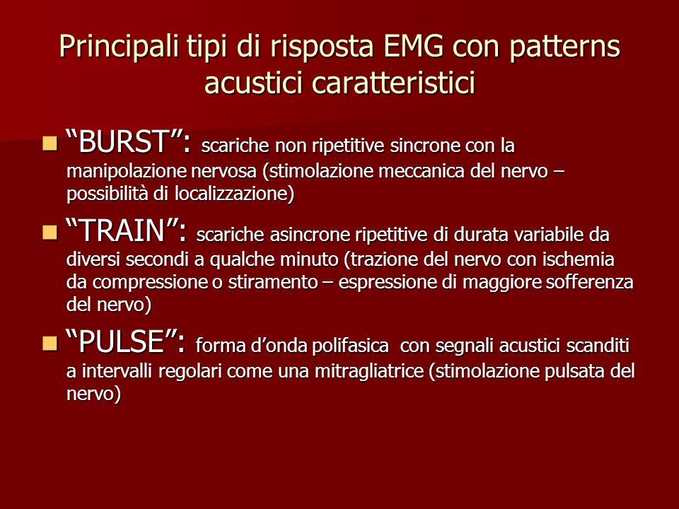 Principali tipi di risposta EMG con patterns acustici caratteristici BURST: scariche non ripetitive sincrone con la manipolazione nervosa (stimolazion