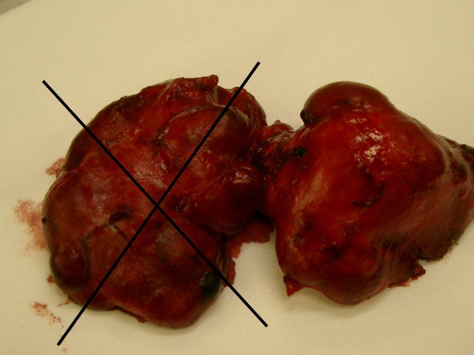Classificazione TNM Tx Il tumore primitivo non può essere definito Tx Il tumore primitivo non può essere definito T0 Non evidenza di tumore primitivo T0 Non evidenza di tumore primitivo T1 Tumore uguale o inferiore a 2 cm nella sua dimensione massima, limitato alla tiroide T1 Tumore uguale o inferiore a 2 cm nella sua dimensione massima, limitato alla tiroide T2 Tumore superiore a 2 cm, inferiore a 4 cm nella sua massima dimensione, limitato alla tiroide T2 Tumore superiore a 2 cm, inferiore a 4 cm nella sua massima dimensione, limitato alla tiroide T3 Tumore superiore a 4 cm nella sua dimensione massima, limitato alla tiroide o qualunque tumore con minima estrinsecazione extratiroidea (es.