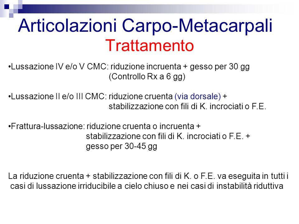 Trattamento Articolazioni Carpo-Metacarpali Lussazione IV e/o V CMC: riduzione incruenta + gesso per 30 gg (Controllo Rx a 6 gg) Lussazione II e/o III CMC: riduzione cruenta (via dorsale) + stabilizzazione con fili di K.