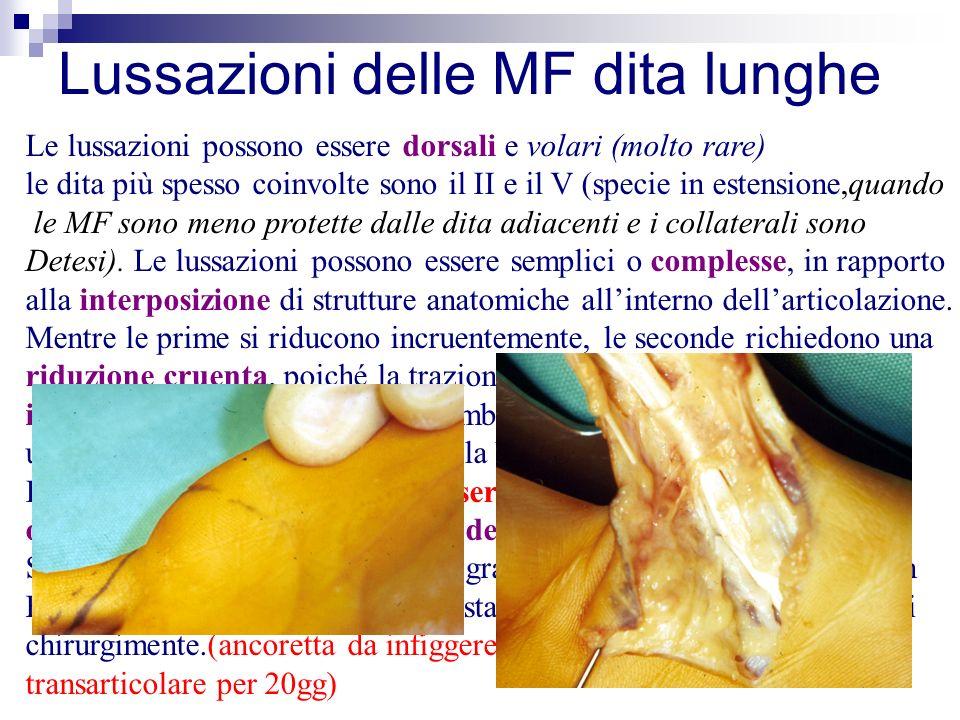Lussazioni delle MF dita lunghe Le lussazioni possono essere dorsali e volari (molto rare) le dita più spesso coinvolte sono il II e il V (specie in estensione,quando le MF sono meno protette dalle dita adiacenti e i collaterali sono Detesi).