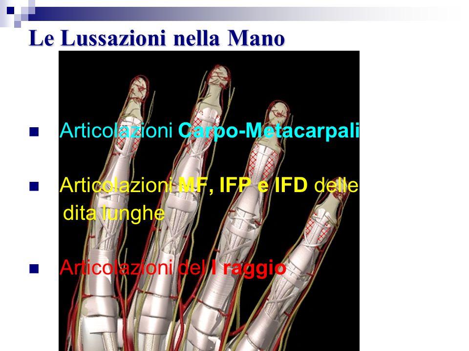 Le Lussazioni nella Mano Articolazioni Carpo-Metacarpali Articolazioni MF, IFP e IFD delle dita lunghe Articolazioni del I raggio