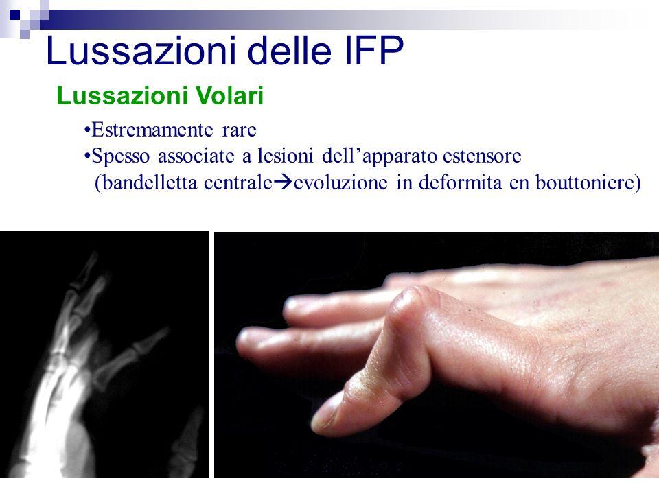Lussazioni Volari Lussazioni delle IFP Estremamente rare Spesso associate a lesioni dellapparato estensore (bandelletta centrale evoluzione in deformita en bouttoniere)