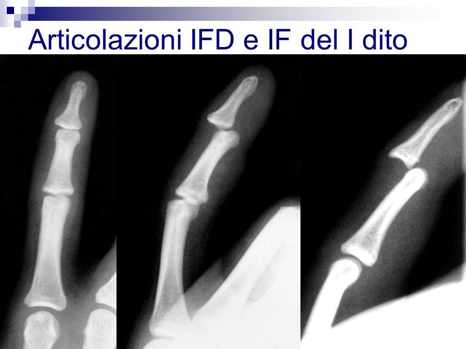 struttura anatomica simile a quella della IFP, tuttavia il minor braccio di leva e la presenza delle inserzioni dei tendini estensore e flessore profondo, rendono le lussazioni di tali articolazioni molto rare.
