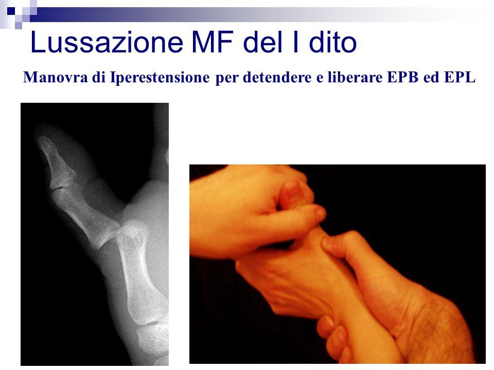 Lussazione MF del I dito Manovra di Iperestensione per detendere e liberare EPB ed EPL