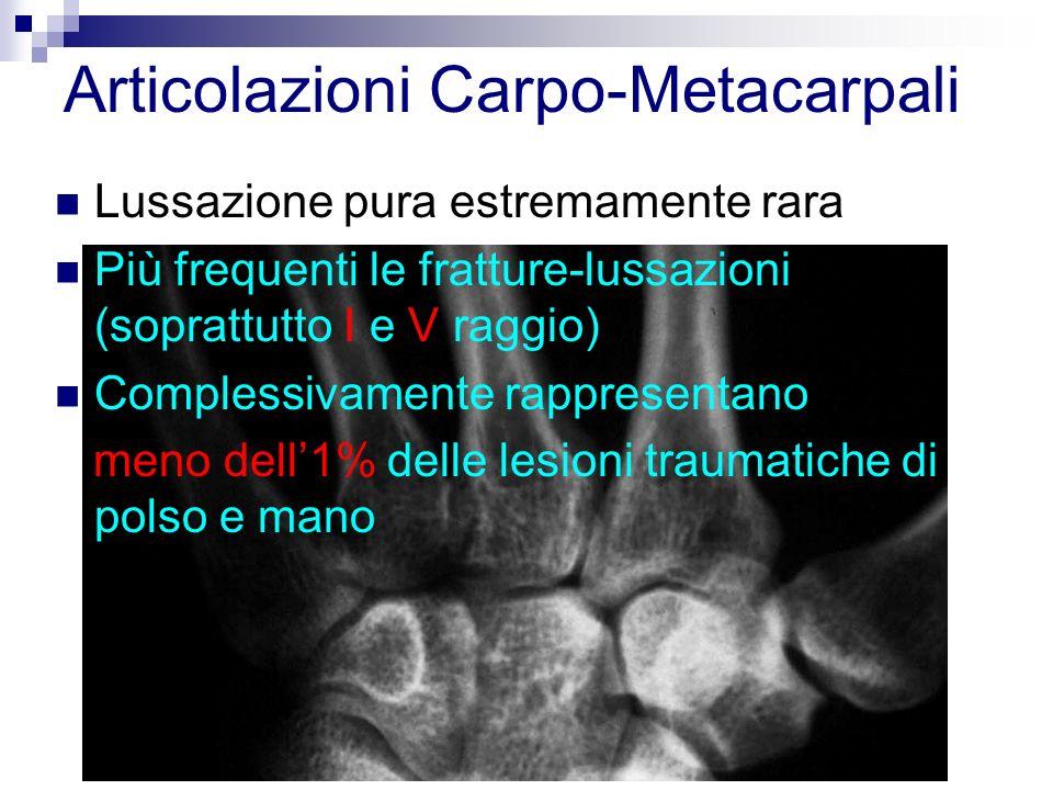 Articolazioni Carpo-Metacarpali Lussazione pura estremamente rara Più frequenti le fratture-lussazioni (soprattutto I e V raggio) Complessivamente rappresentano meno dell1% delle lesioni traumatiche di polso e mano