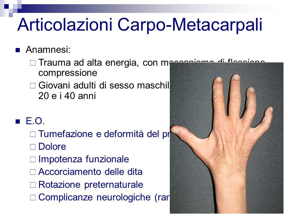 Articolazioni Carpo-Metacarpali Anamnesi: Trauma ad alta energia, con meccanismo di flessione- compressione Giovani adulti di sesso maschile, in età compresa tra i 20 e i 40 anni E.O.