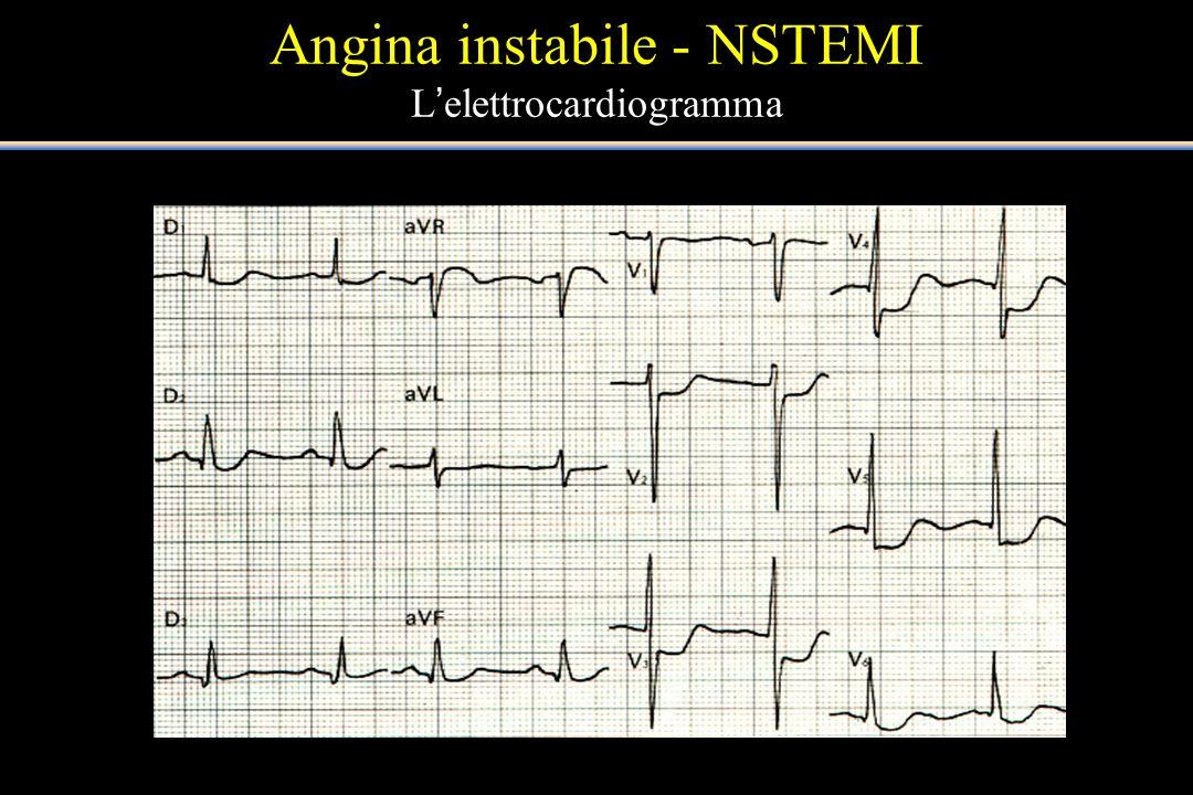 Angina instabile - NSTEMI Lelettrocardiogramma