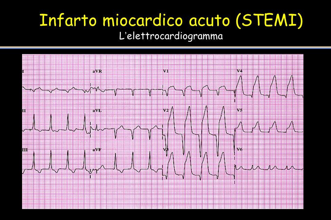Infarto miocardico acuto (STEMI) Lelettrocardiogramma