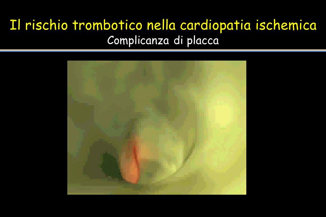 Il rischio trombotico nella cardiopatia ischemica Complicanza di placca