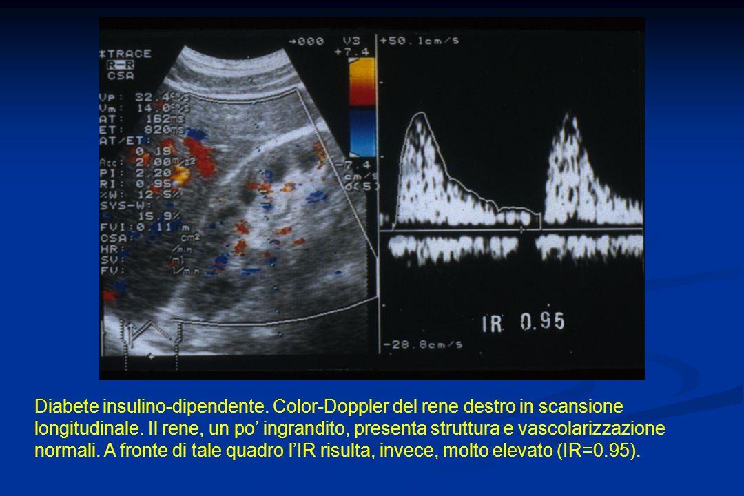Diabete insulino-dipendente. Color-Doppler del rene destro in scansione longitudinale. Il rene, un po ingrandito, presenta struttura e vascolarizzazio