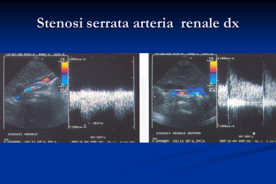 Stenosi serrata arteria renale dx