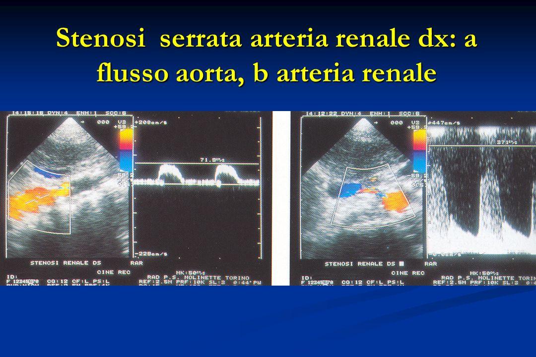 Stenosi serrata arteria renale dx: a flusso aorta, b arteria renale