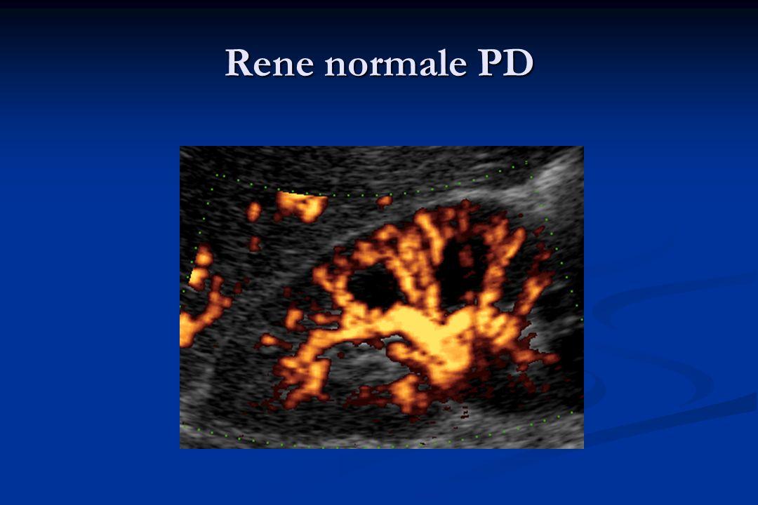 0,70: limite superiore normale di RI nel soggetto adulto normale Platt JF, AJR 1992 0,70: limite superiore normale di RI nel soggetto adulto normale Platt JF, AJR 1992 Bambini 10 anni: 0,58 ± 0,05) Vade A, J Ultrasound Med 1993 Bambini 10 anni: 0,58 ± 0,05) Vade A, J Ultrasound Med 1993 Adulti normali: RI positivamente correlato alletà; può superare 0.70 nei soggetti sani di età > 60 aa Terry JD, J Ultrasound Med 1992 Adulti normali: RI positivamente correlato alletà; può superare 0.70 nei soggetti sani di età > 60 aa Terry JD, J Ultrasound Med 1992 Adulti normali: incremento RI nel rene residuo del donatore dopo nefrectomia per trapianto di rene da donatore vivente (pre-trapianto 0,67 ± 0,04, 6 e 12 settimane dopo 0,73 ± 0,05) Adulti normali: incremento RI nel rene residuo del donatore dopo nefrectomia per trapianto di rene da donatore vivente (pre-trapianto 0,67 ± 0,04, 6 e 12 settimane dopo 0,73 ± 0,05) Shokeir AA, J Urol 2003 Shokeir AA, J Urol 2003 FLUSSO ARTERIOSO INTRARENALE NEL SOGGETTO NORMALE