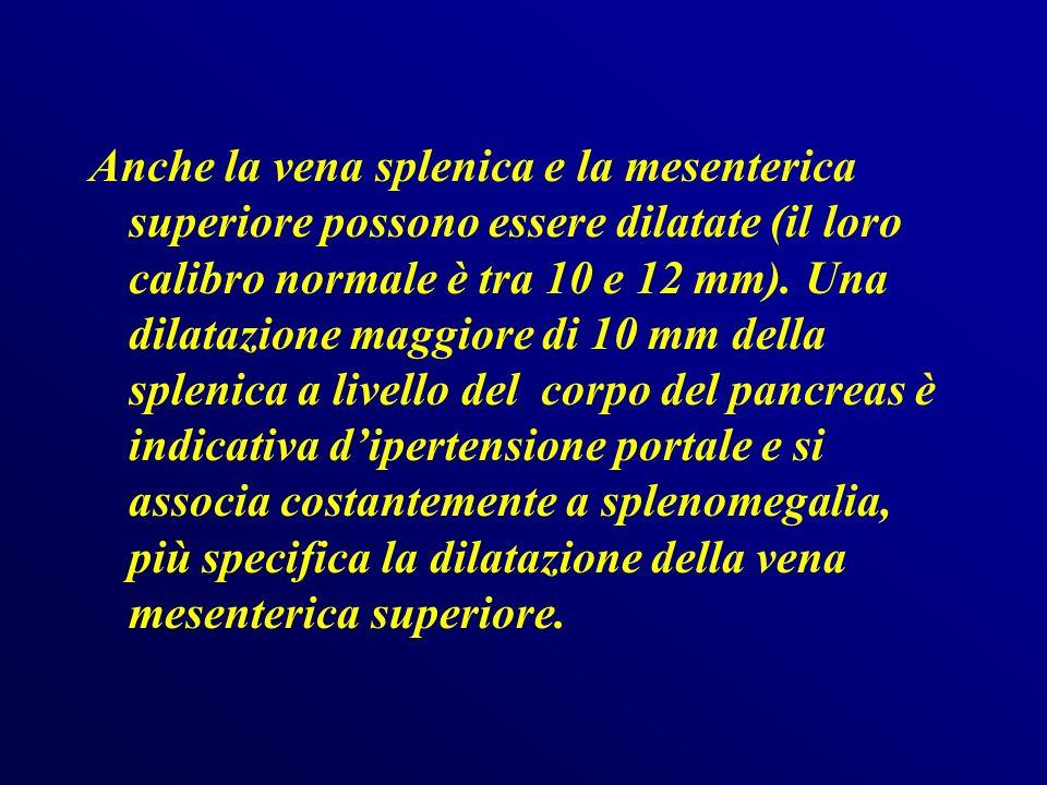 Valutazione ecocolordoppler del flusso portale Il CD ed il PD consentono una valutazione diretta del flusso, che va rilevato in corrispondenza del repere ecografico allincrocio con larteria epatica, il volume campione deve corrispondere al 50% del vaso.