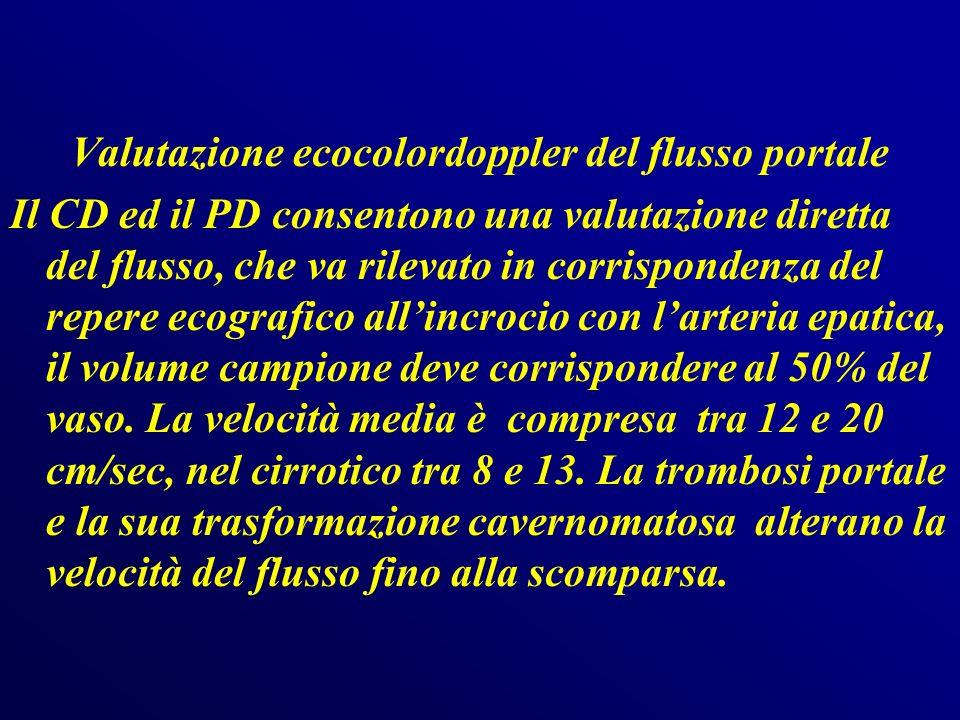 Caratteri flussimetrici Normalmente il flusso portale è continuo con oscillazioni modulate dagli atti respiratori (diminuisce in inspirazione e aumenta in espirazione).