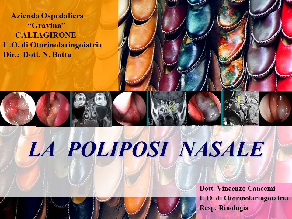 Poliposi eosinofila Maggioranza dei casi Alta recidivanza Minore risposta ai farmaci Spesso rapida progressione Profonda alterazione anatomica I II III