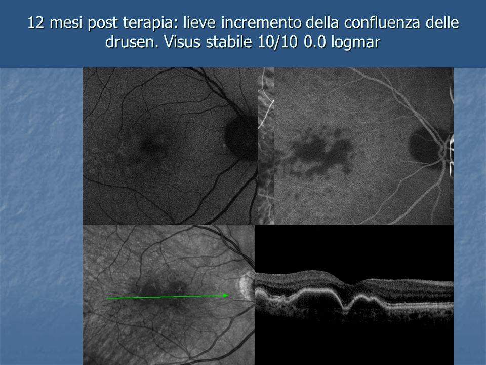 12 mesi post terapia: lieve incremento della confluenza delle drusen. Visus stabile 10/10 0.0 logmar