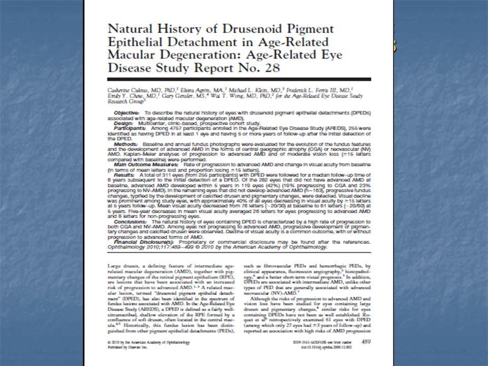 Drusen confluenti paracentrali inferiori in gran parte regredite dopo 6 mesi di supplementazione di antiossidanti e ω3.