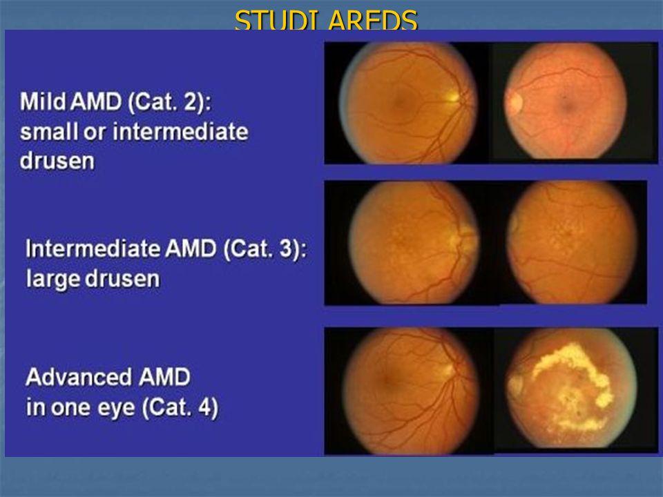 STUDI AREDS AREDS 2: Nuova formulazione AREDS 2: Nuova formulazione Acidi grassi polinsaturi (DHA/EPA) 1000 mg Acidi grassi polinsaturi (DHA/EPA) 1000