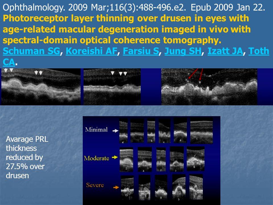 Segni premonitori di degenerazione fotorecettorialeOphthalmology. 2009 Mar;116(3):488-496.e2. Epub 2009 Jan 22. Photoreceptor layer thinning over drus