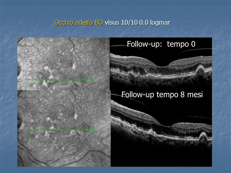 Occhio adelfo BO visus 10/10 0.0 logmar Follow-up: tempo 0 Follow-up tempo 8 mesi