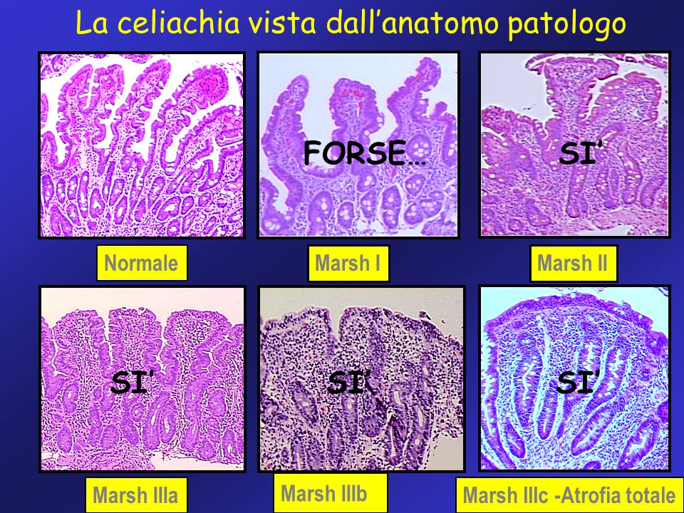 36 Normale Marsh IMarsh II Marsh IIIa Marsh IIIb Marsh IIIc -Atrofia totale La celiachia vista dallanatomo patologo FORSE… SI SI SI SI