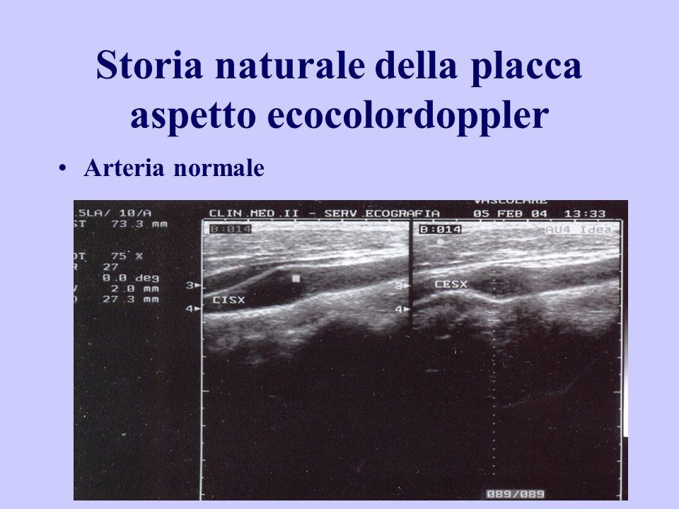 Storia naturale della placca aspetto ecocolordoppler Arteria normale