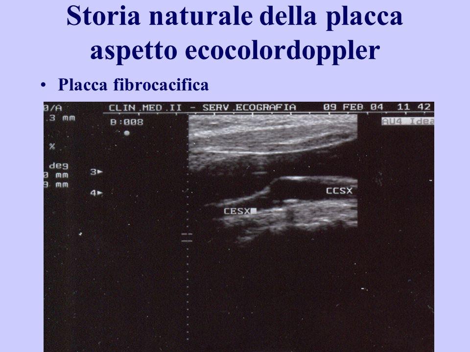 Storia naturale della placca aspetto ecocolordoppler Placca fibrocacifica