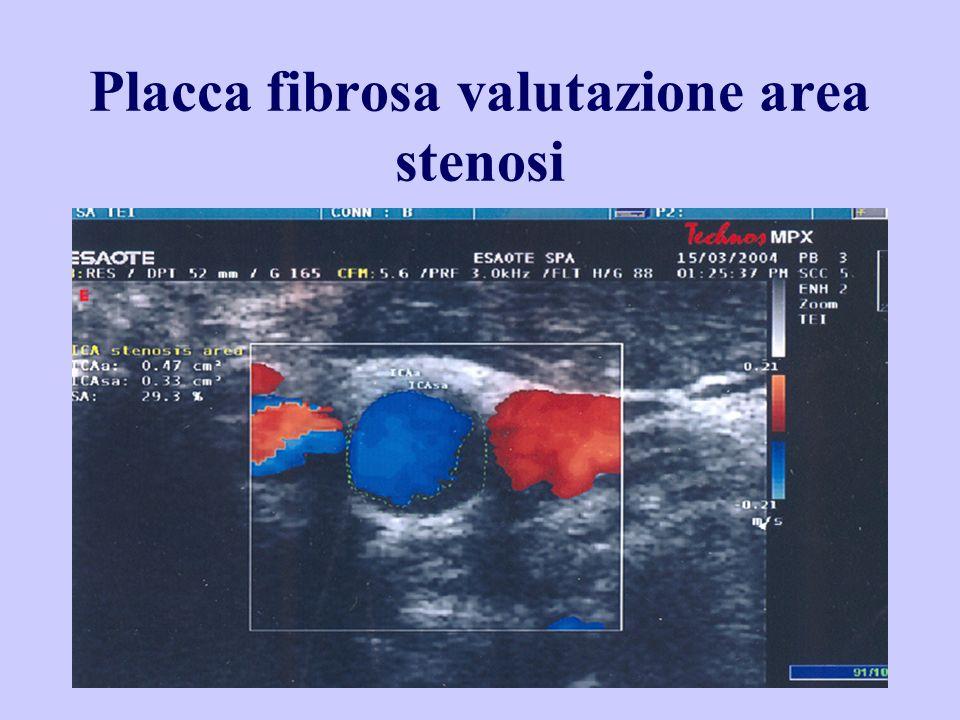 Placca fibrosa valutazione area stenosi