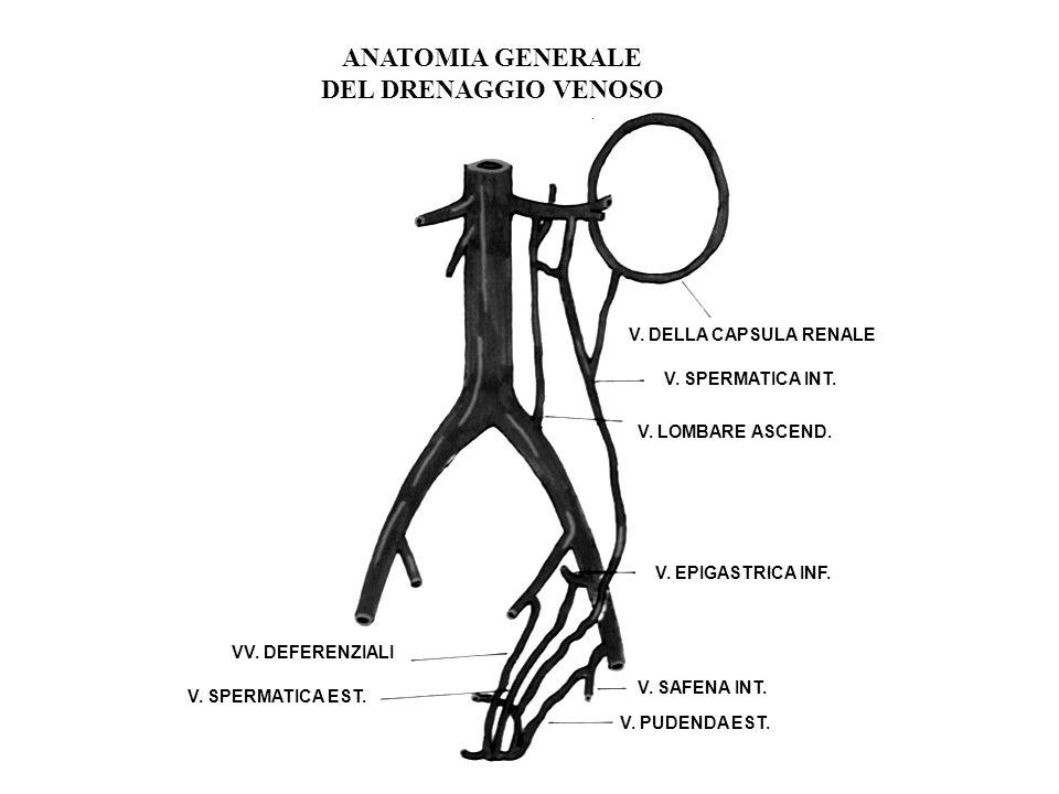 VARICOCELE Varicocele idiopatico: Dilatazione del plesso pampiniforme per reflusso od ostacolato deflusso della vena spermatica interna. Incidenza glo