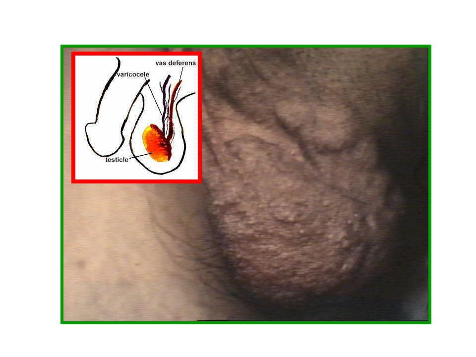 SISTEMA VENOSO GENERALE DI DRENAGGIO GONADICO: 1) vv testicolari anteriori v.spermatica interna 2) vv testicolari posteriori v.epigastrica inferiore 3
