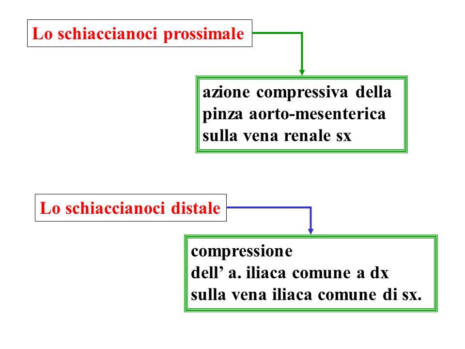Lo schiaccianoci prossimale azione compressiva della pinza aorto-mesenterica sulla vena renale sx compressione dell a.