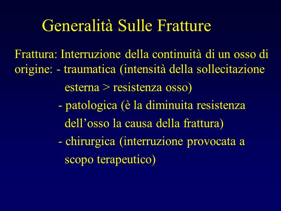 Generalità Sulle Fratture Frattura: Interruzione della continuità di un osso di origine: - traumatica (intensità della sollecitazione esterna > resist