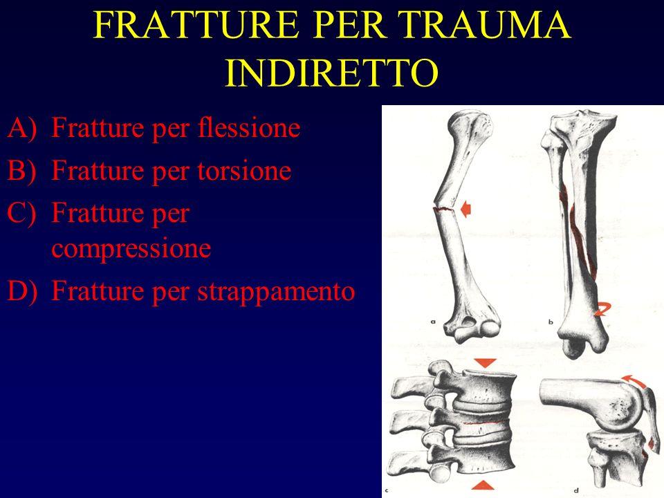 FRATTURE PER TRAUMA INDIRETTO A)Fratture per flessione B)Fratture per torsione C)Fratture per compressione D)Fratture per strappamento