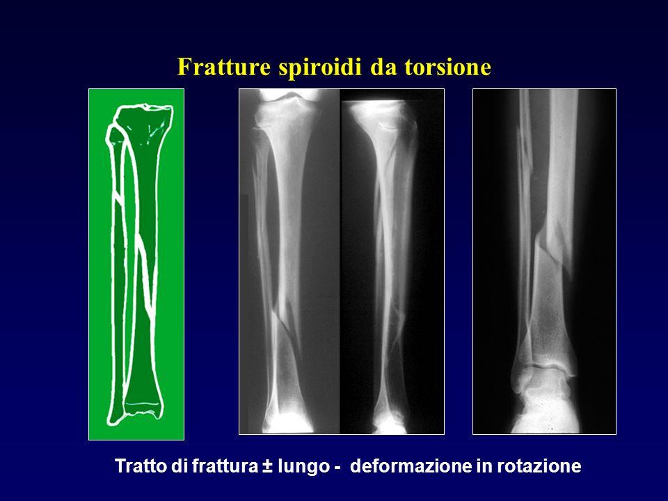 Fratture spiroidi da torsione Tratto di frattura ± lungo - deformazione in rotazione