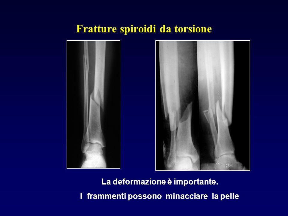 Fratture spiroidi da torsione La deformazione è importante. I frammenti possono minacciare la pelle