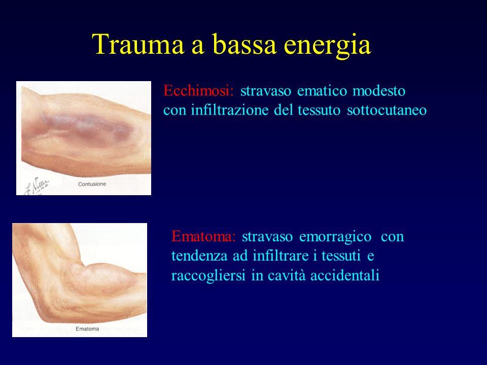 Trauma a bassa energia Ecchimosi: stravaso ematico modesto con infiltrazione del tessuto sottocutaneo Ematoma: stravaso emorragico con tendenza ad inf